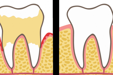Dentists Explain 9 Things to Never Do to Your Teeth