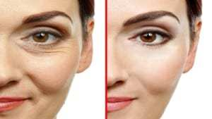 Science Explains What Happens To Your Skin When You Use Botox