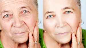 11 Face Exercises That Reduce Wrinkles And Make You Look Younger