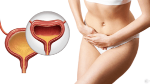 17 Bladder Infection Symptoms (And How to Fix It)