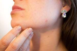 Zinc For Acne : Does It Work?
