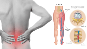 How to Stop Sciatic Nerve and Back Pain With Just A Tennis Ball