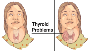 This 60 Second Test Will Tell You If Your Thyroid Is Working Properly