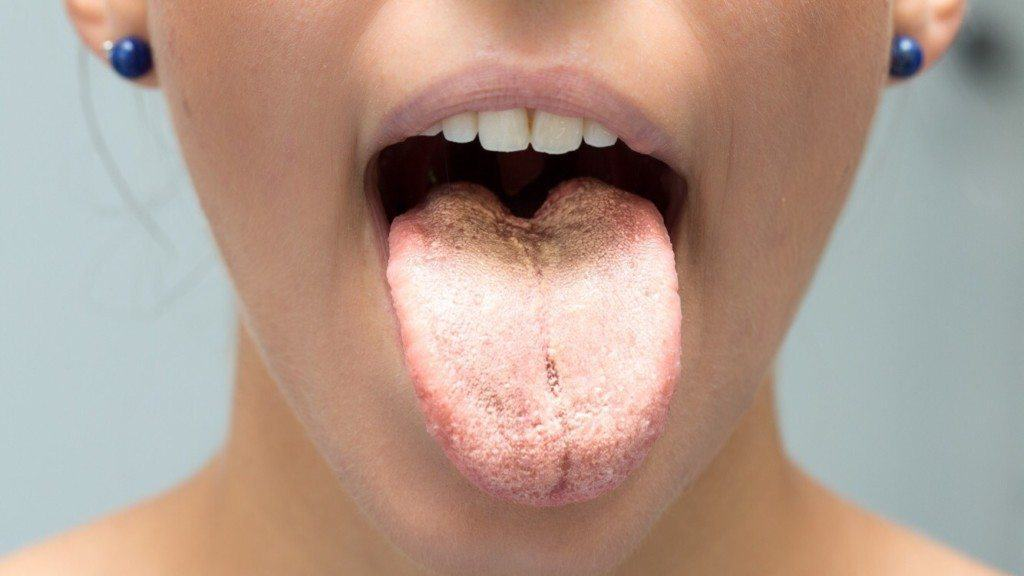 5 Reasons You Get a Metallic Taste in Your Mouth (And How to Avoid It)