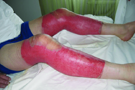 Second Degree Burn Pictures Treatment & Symptoms